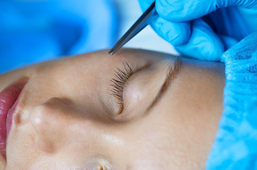 Dermopigmentazione: tutte le informazioni 6 Dermopigmentazione: tutte le informazioni